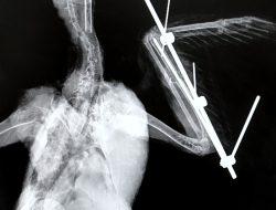Micro External Skeletal Fixation X-ray
